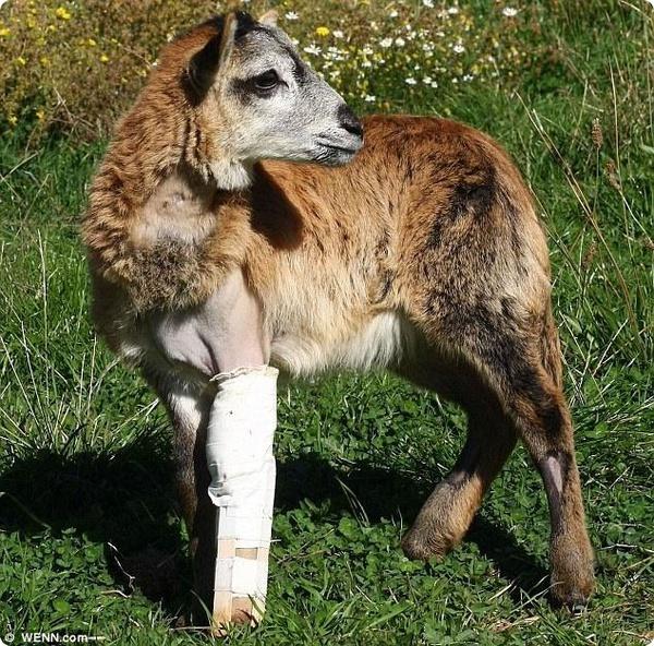 Юной Кармен изготовили протез ноги